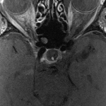 Image 1 b. T1 axial ponderation MRI of the orbit without any muscle anomaly  or tumefaction of the orbits